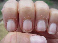 دلایل ریشه ریشه شدن پوست اطراف ناخن ها و درمان آن