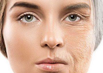 نشانه های پوستی که دارد پیر می شود