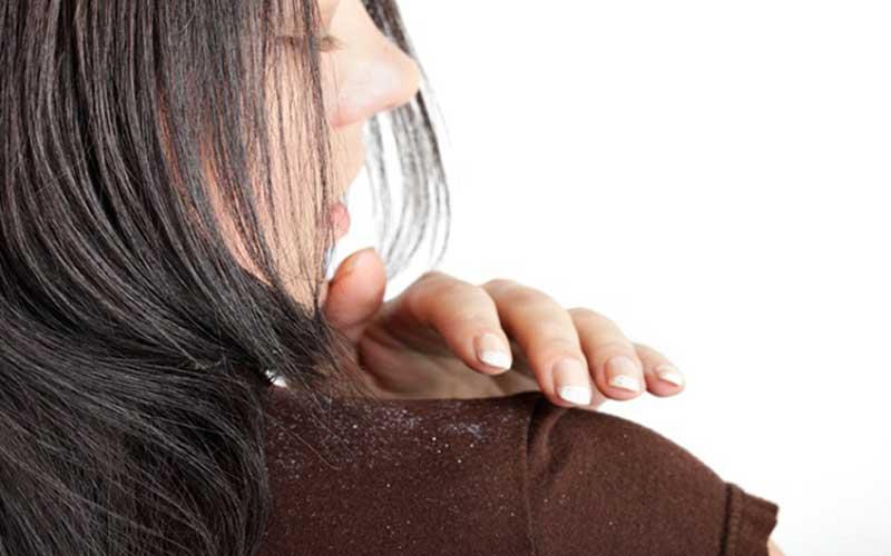 روشهای خانگی و گیاهی درمان شوره سر