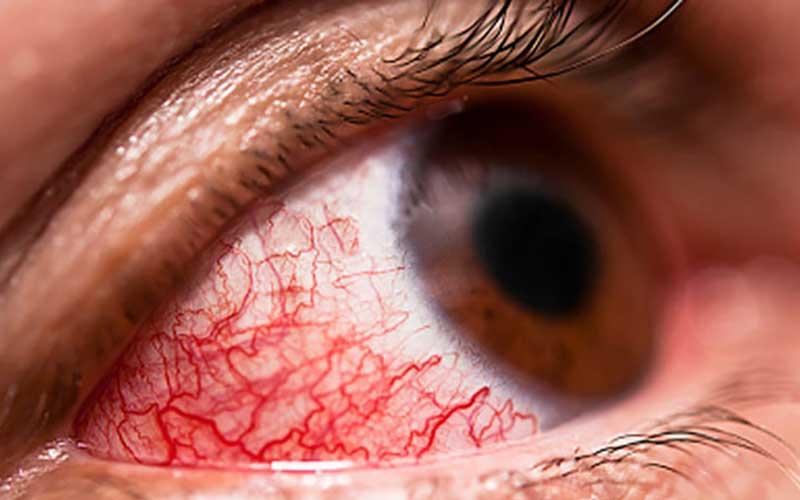 آشنایی با کونژکتیویت یا قرمزی چشم