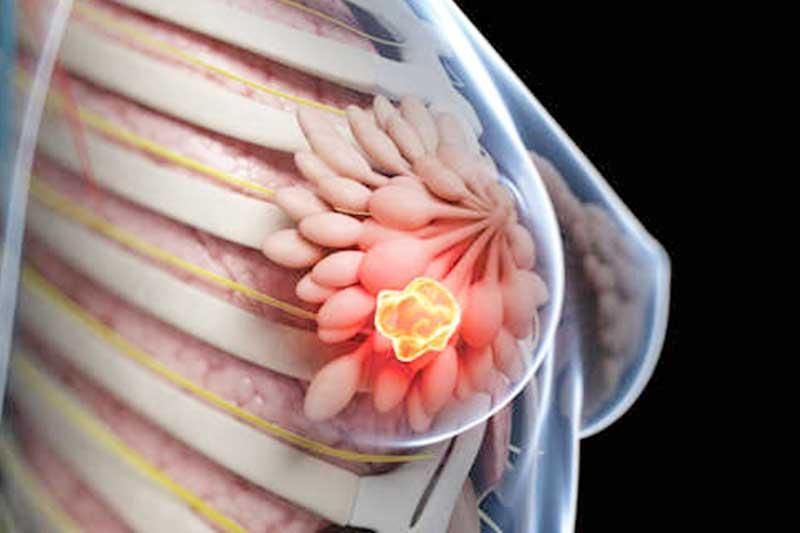 بیماری سرطان پستان