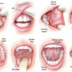 درمان آفت دهان