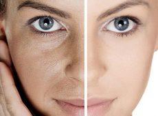 ۵ روش سریع برای درمان منافذ باز پوست صورت