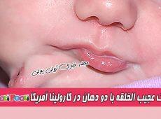 تولد و جراحی کودک عجیب الخلقه با دو دهان در آمریکا+ علت تکرار اجزای صورت
